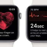 Apple Watches get surprising new features to detect heart conditions